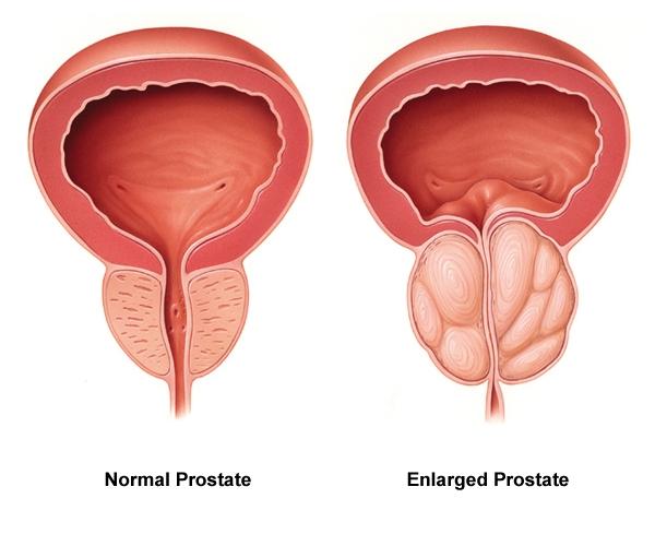 normálna a zväčšená prostata