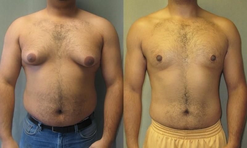 gynekomastia u mužov