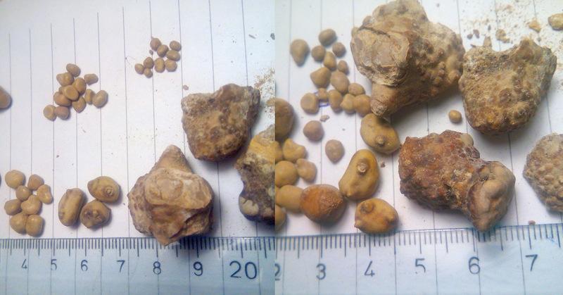 ľadvinové kamene