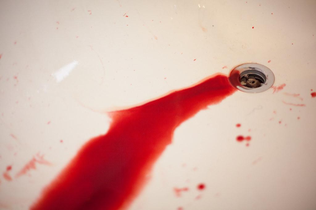 krv v moči, hematúria