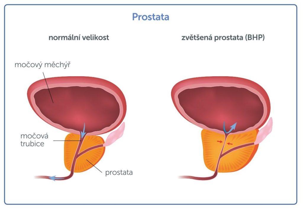 veľkosť prostaty