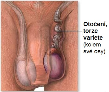 torzia ľavého semenníka