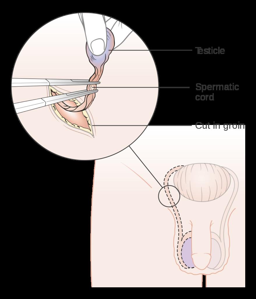 orchiektómia