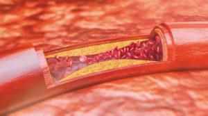 erektílna dysfunkcia, príznak kardiovaskulárnych chorôb